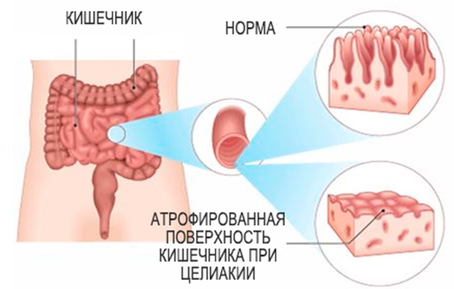 кишечник человека при непереносимости клейковины
